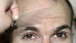 migliore-peeling-viso